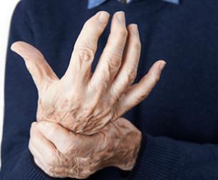 arthrose une maladie invalidantes