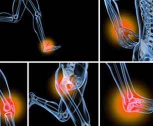 Les arthroses les plus courantes