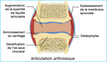 articulations arthrosique